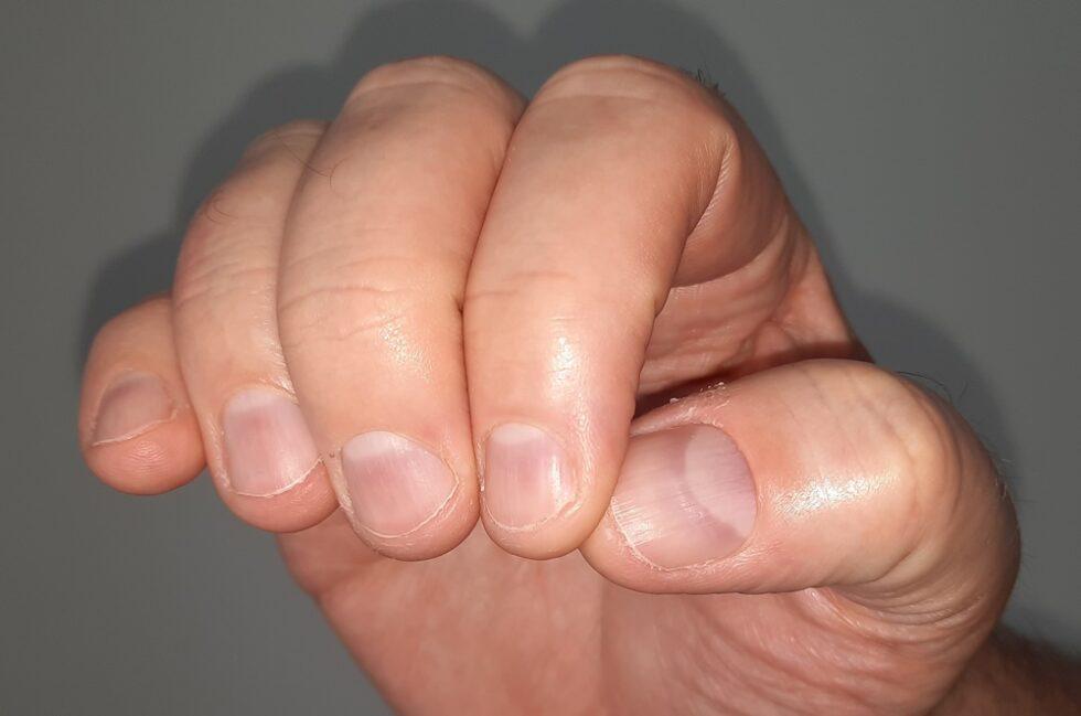 Fingernägel kauen: Ursachen, Folgen und Abgewöhnung